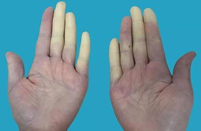 手指遇冷变色?可能是雷诺现象!