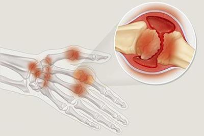 骨关节炎和类风湿关节炎的区别