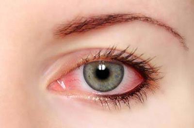 眼白发红、视野模糊,可能是类风湿在作怪!