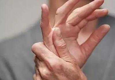 类风湿患者必须要减少发病次数